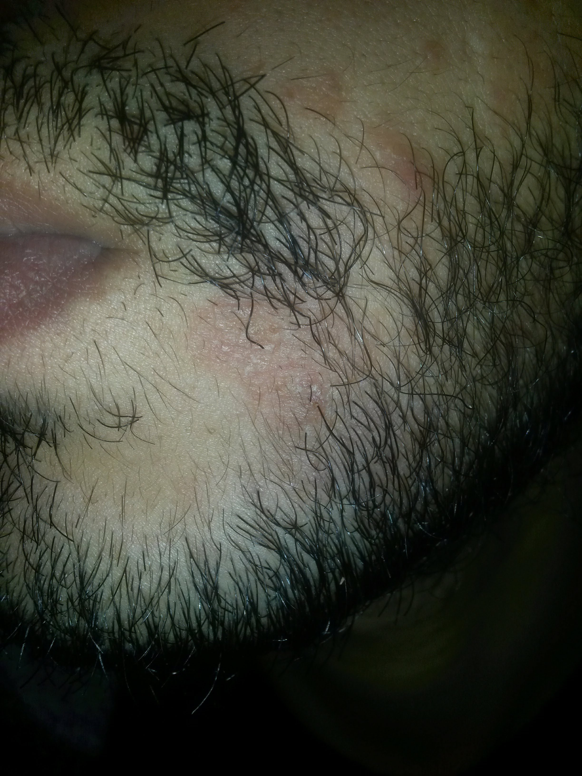bad itching in my face need help at Beard Profile Forum