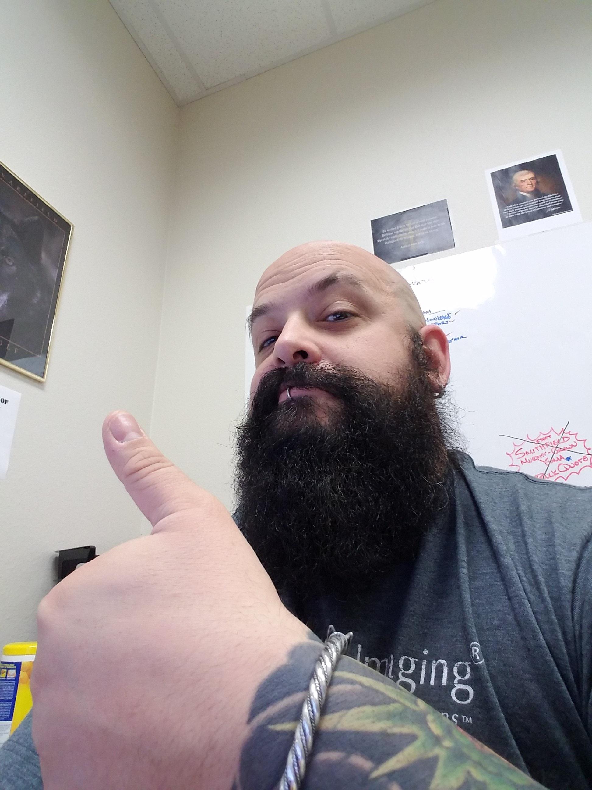 Mustache Bald Spot At Beard Profile Forum