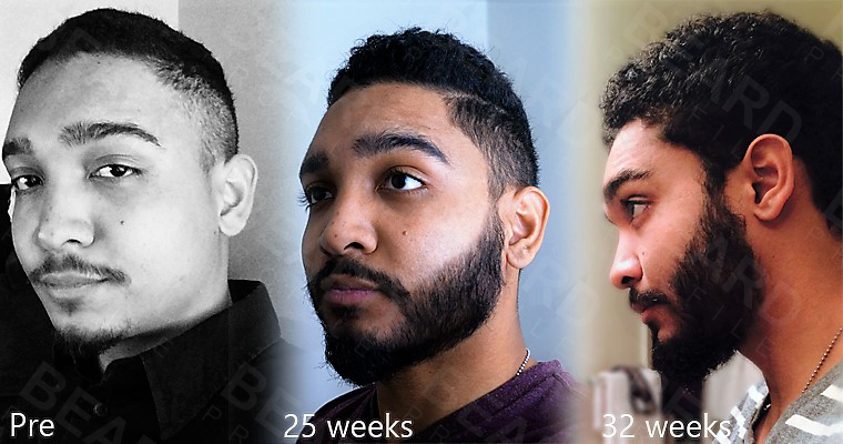 The Guide To Growing Your Beard With Minoxidil Beard Profile