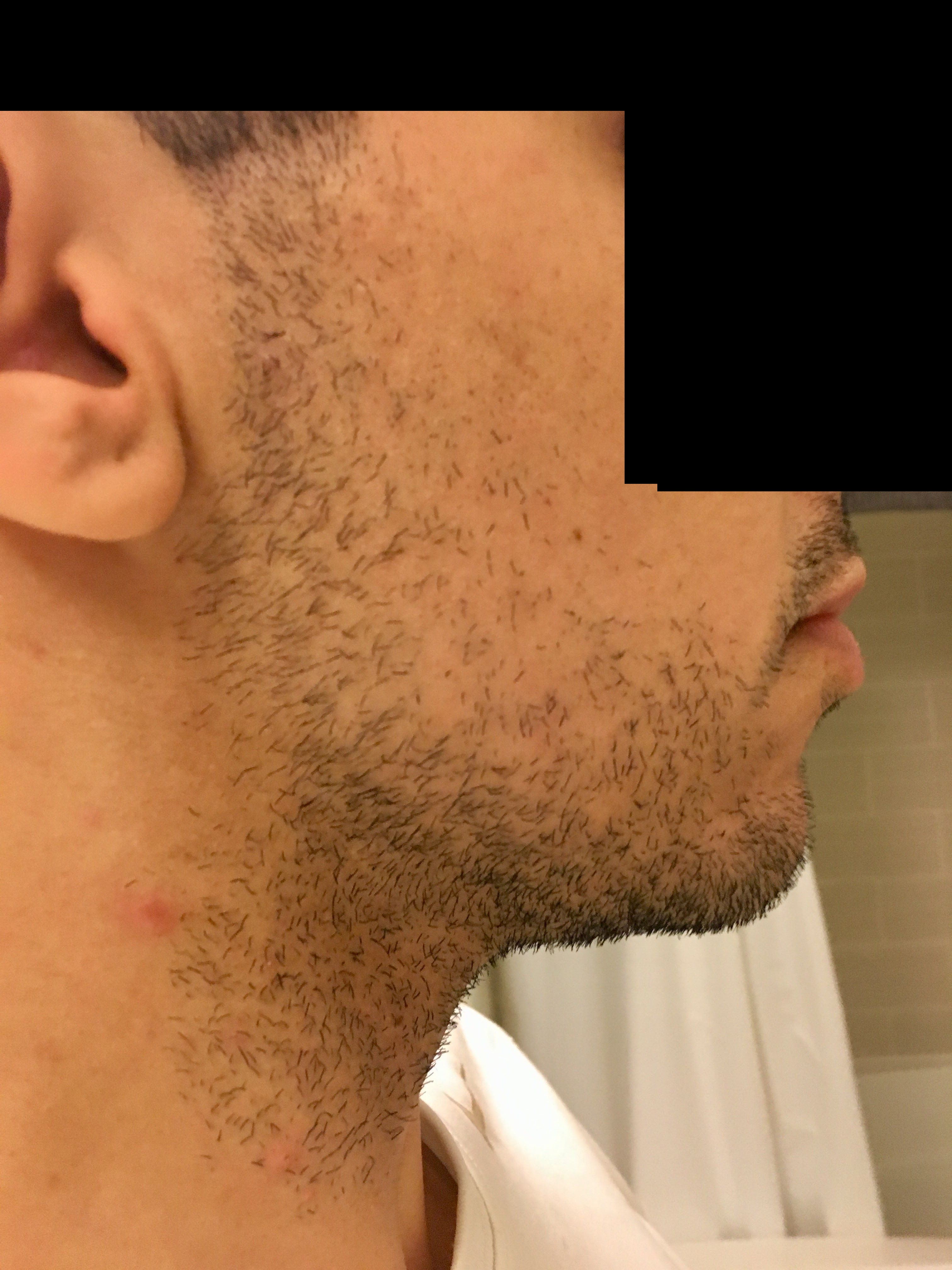26* weeks with very little if any progress at Beard Profile