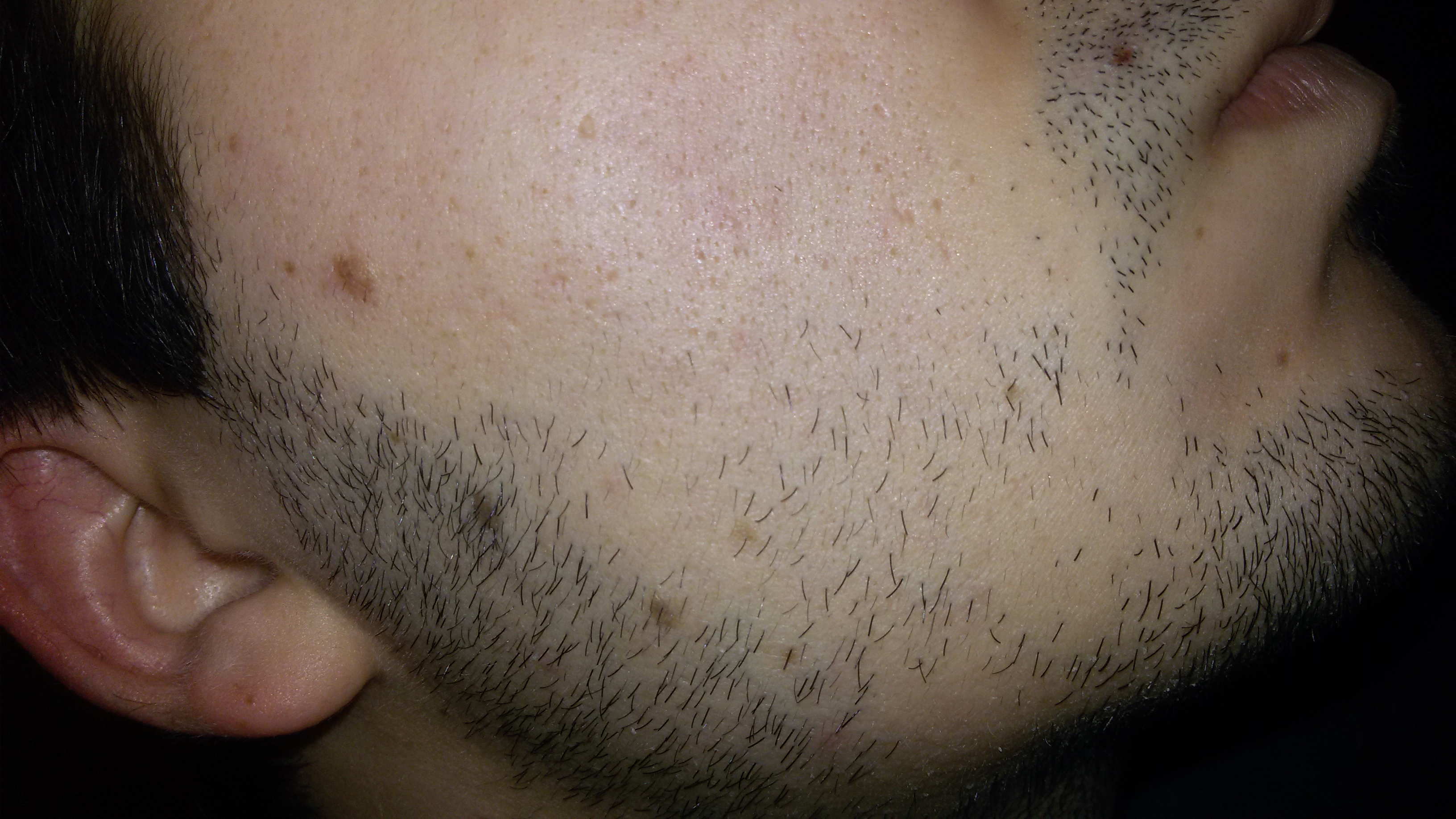 Novice, 47 years old. Beard potential ? at Beard Profile Forum