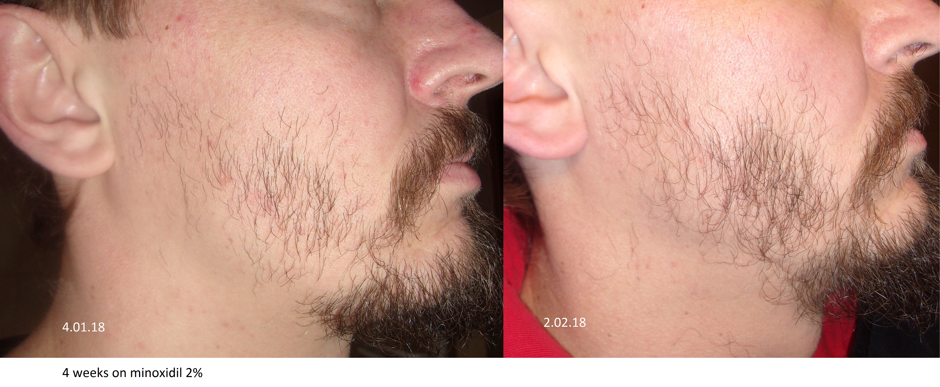 minoxidil 2% beard journey at Beard Profile Forum
