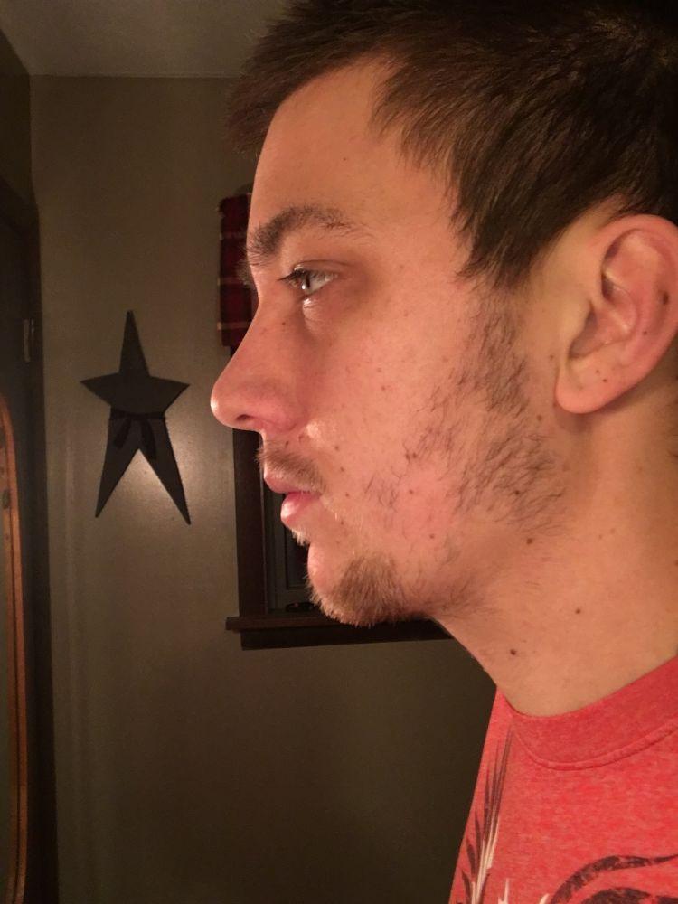 Growth forum minoxidil for beard Redensyl