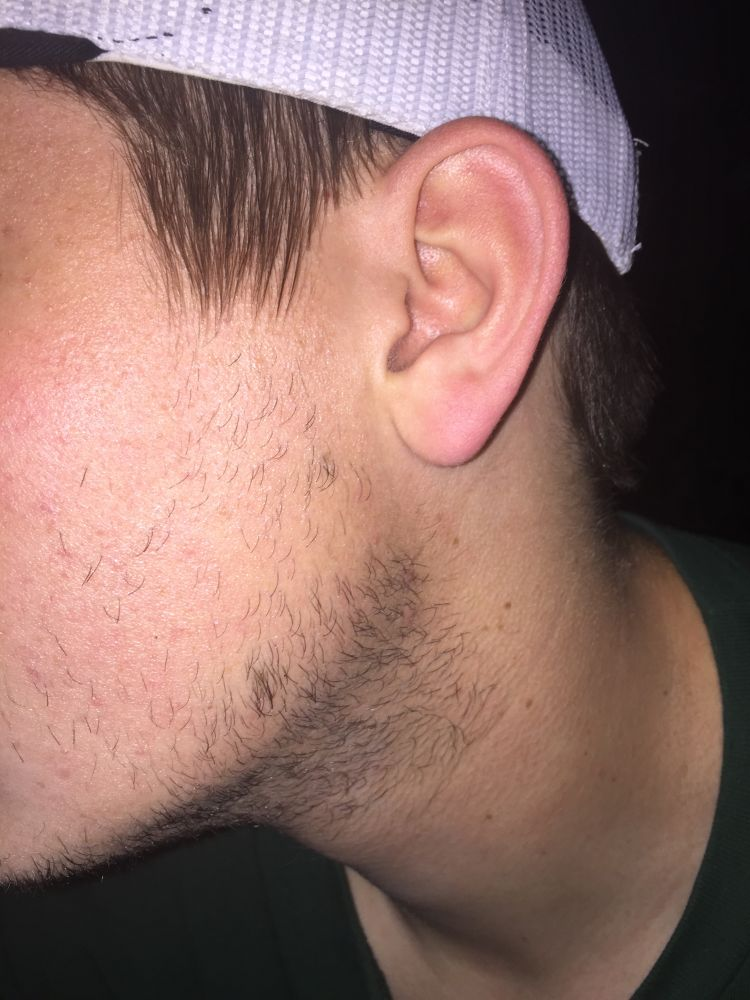National Day Of Reconciliation ⁓ The Fastest Minoxidil Beard