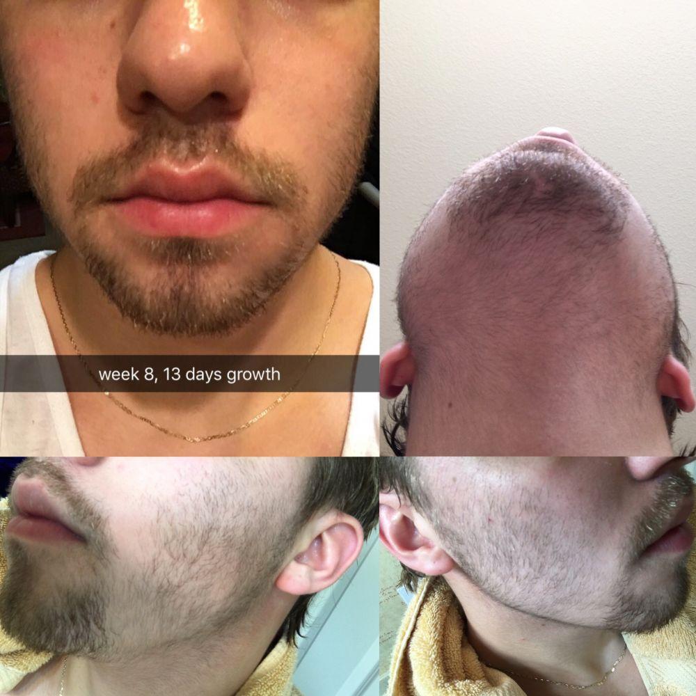 Minoxidil Progress At Beard Profile Forum