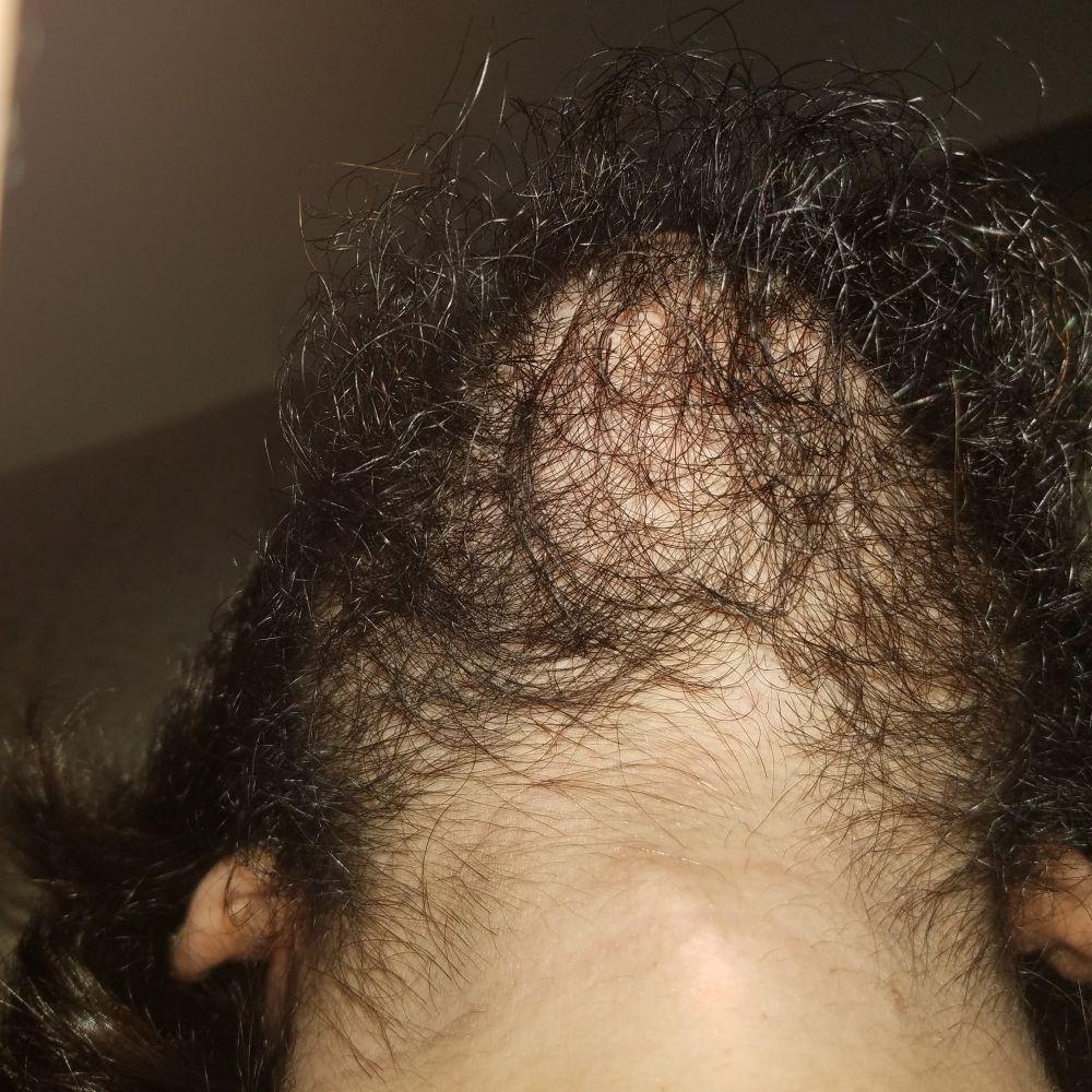 If You Already Have Facial Hair, Can Minoxidil Still Help ...