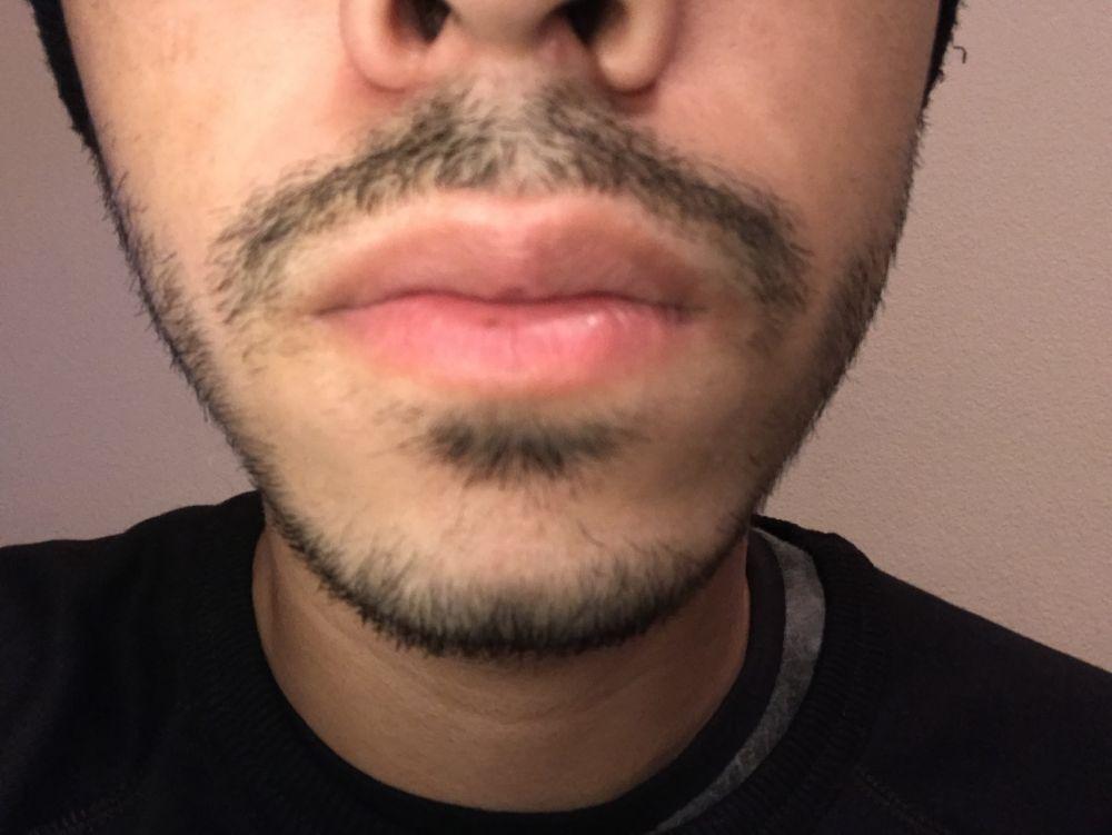 Minoxidil Beard Week 46 Getting Stale Fuzzfridays